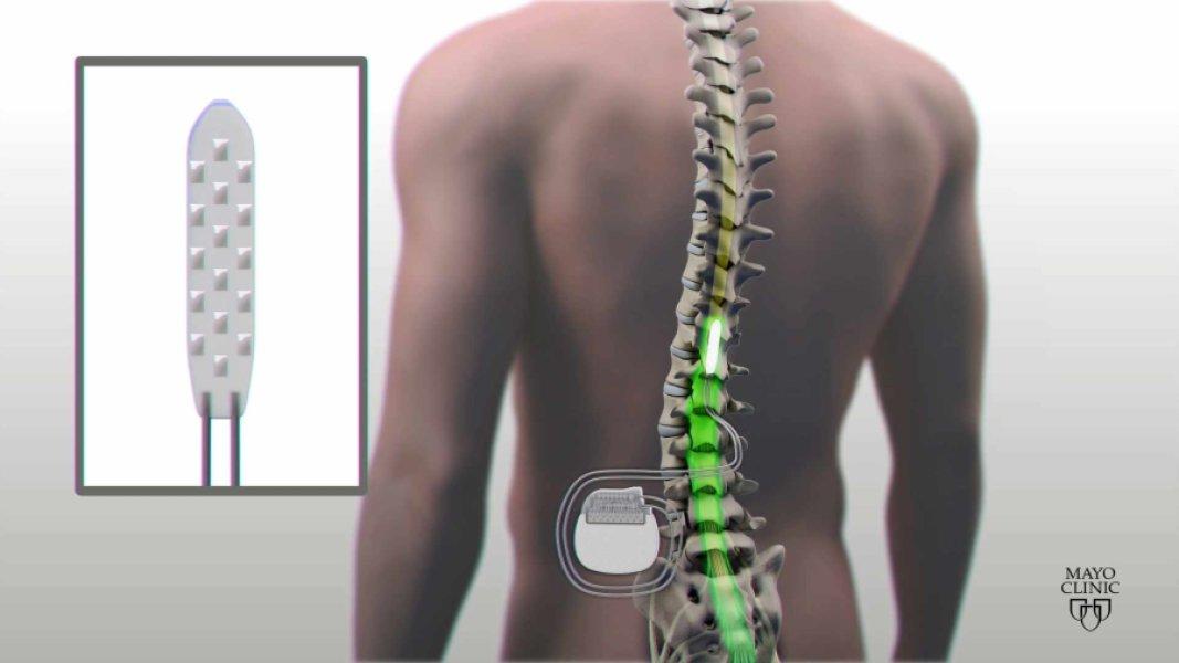 Read more about the article Implante eléctrico devolve mobilidade a homem paralisado
