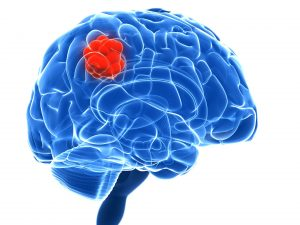 Read more about the article Nova tecnologia permite perceber melhor os tumores cerebrais